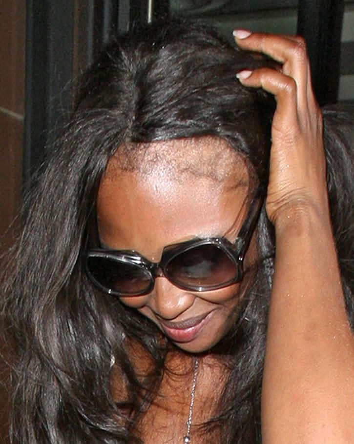 Naomi Campbell's Bald Spot! What's Up With Her Hair Care?