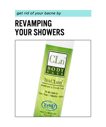 To Clear Back Acne, Shower Smarter