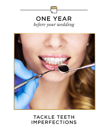 One Year Before Your Wedding: Tackle Teeth Imperfections