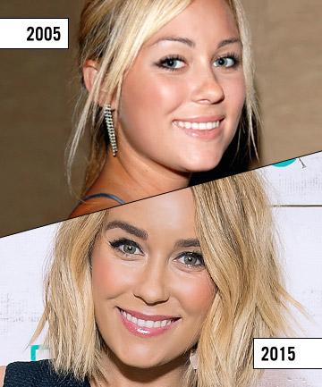 Lauren Conrad 16 Best Celebrity Eyebrow Transformations