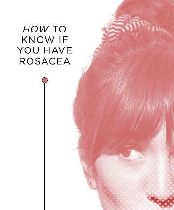 How to Know if You Have Rosacea
