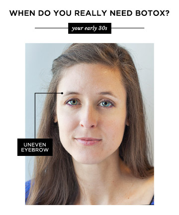 In your early 30s at what age do you really need botox page 5 in your early 30s solutioingenieria Images