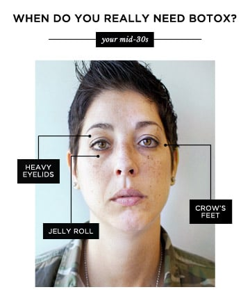 botox for smile lines