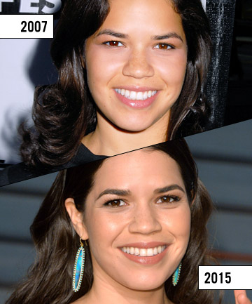 40 Best Before and After images | Celebrities, Plastic ...