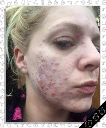 Chemical Peel Leaves Woman With Cystic Acne-Covered Face