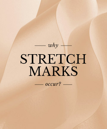 Why Do Stretch Marks Occur?