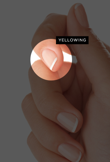 Yellow, discolored nails