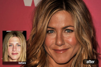 The Best: Jennifer Aniston