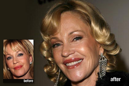 The Worst: Melanie Griffith