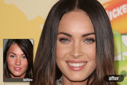 The Best Megan Fox Best And Worst Celebrity Plastic