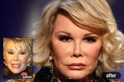 20 Best & Worst Celebrity Plastic Surgery Stories ...