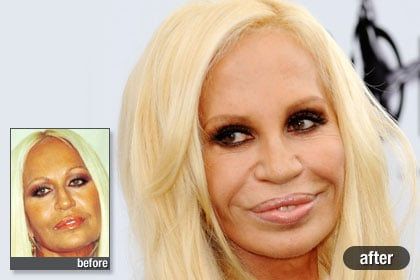 The Worst: Donatella Versace