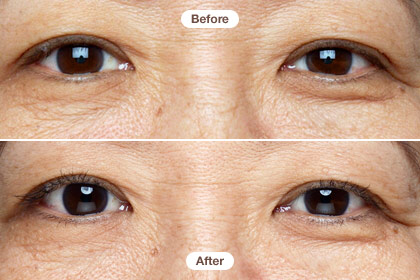 Rhonda 50s Our Six Week Eye Cream Expose Page 13