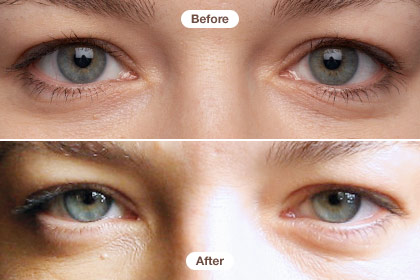 Our Six Week Eye Cream Expose