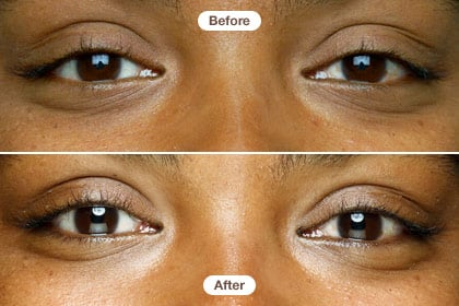 Ayesha 30s Our Six Week Eye Cream Expose Page 2