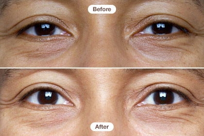 Yvonne, 40s, Our Six-Week Eye Cream Expose - (Page 20)