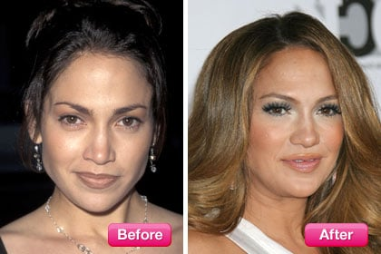 Jennifer Lopez Eyebrows on Jennifer Lopez  Celebrity Eyebrow Makeovers