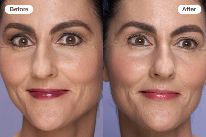 Erase 10 years: Balance color with neutrals on your face