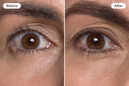 Erase 10 years: Define your eyes with a little liner and fill in your brows