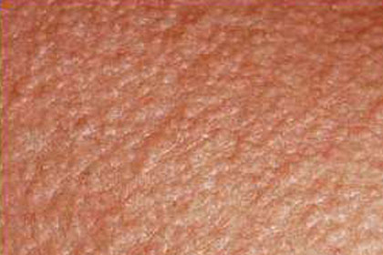 Skin Emergency: Heat Rash