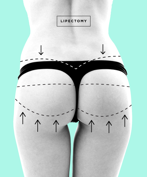 Butt Lift aka Lipectomy