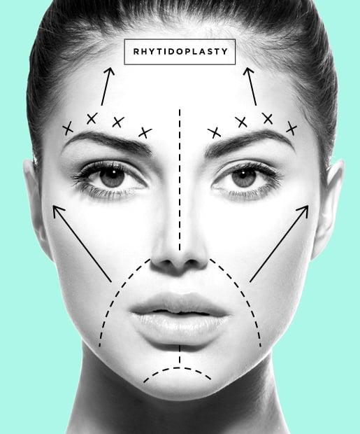 Facelift aka Rhytidoplasty