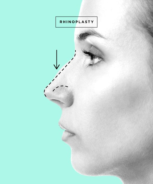 Nose Job aka Rhinoplasty