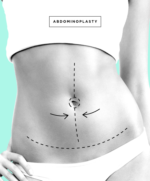 Tummy Tuck aka Abdominoplasty