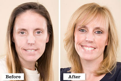The Extreme and Extremely Beautiful Makeover