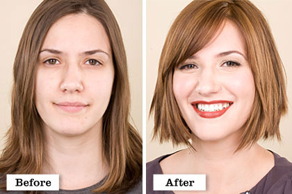 After before chin facial makeover photo pic