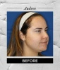 Chemical Peels Can Treat Acne