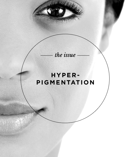 The Issue: Hyperpigmentation