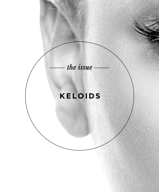 The Issue: Keloids
