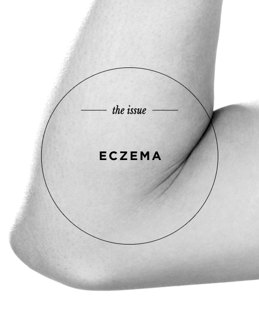 The Issue: Eczema