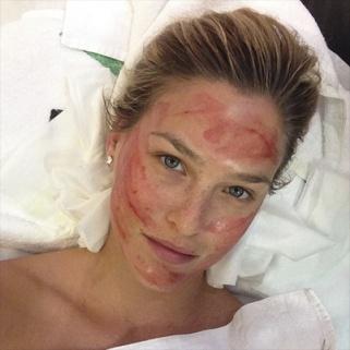 Bar Refaeli Instagrams Her Alarming Vampire Facelift