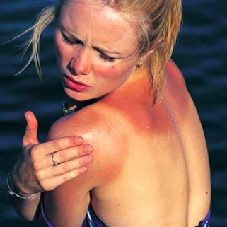 The 15 Sunscreen Mistakes You're Making