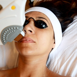 I Survived a Groupon Laser Treatment