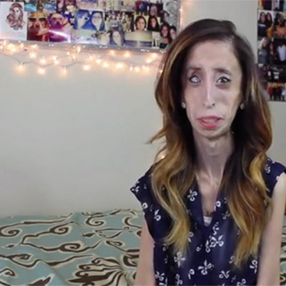 The 'World's Ugliest Woman' Takes on Online Bullying