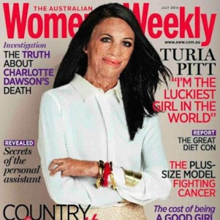 Inspirational Burn Victim Covers Women's Magazine