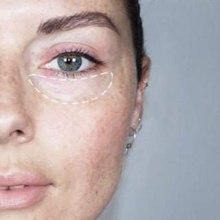 How to Erase Dark Circles With Makeup