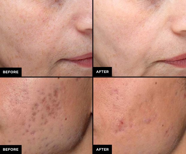 Laser treatment for hair removal on face cost in bangalore dating