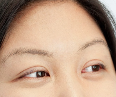 My Mom Made Me Get Double Eyelid Surgery