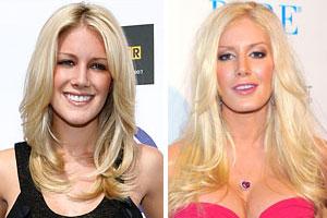Editor's Blog: Has Celebrity Plastic Surgery Gone Too Far?