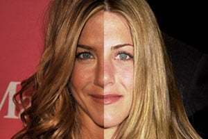 Best And Worst Celebrity Plastic Surgery
